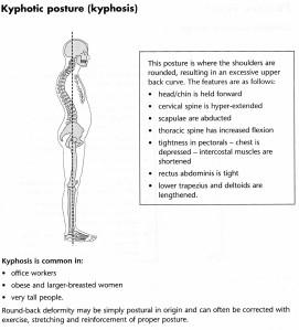 Kyphotic Posture