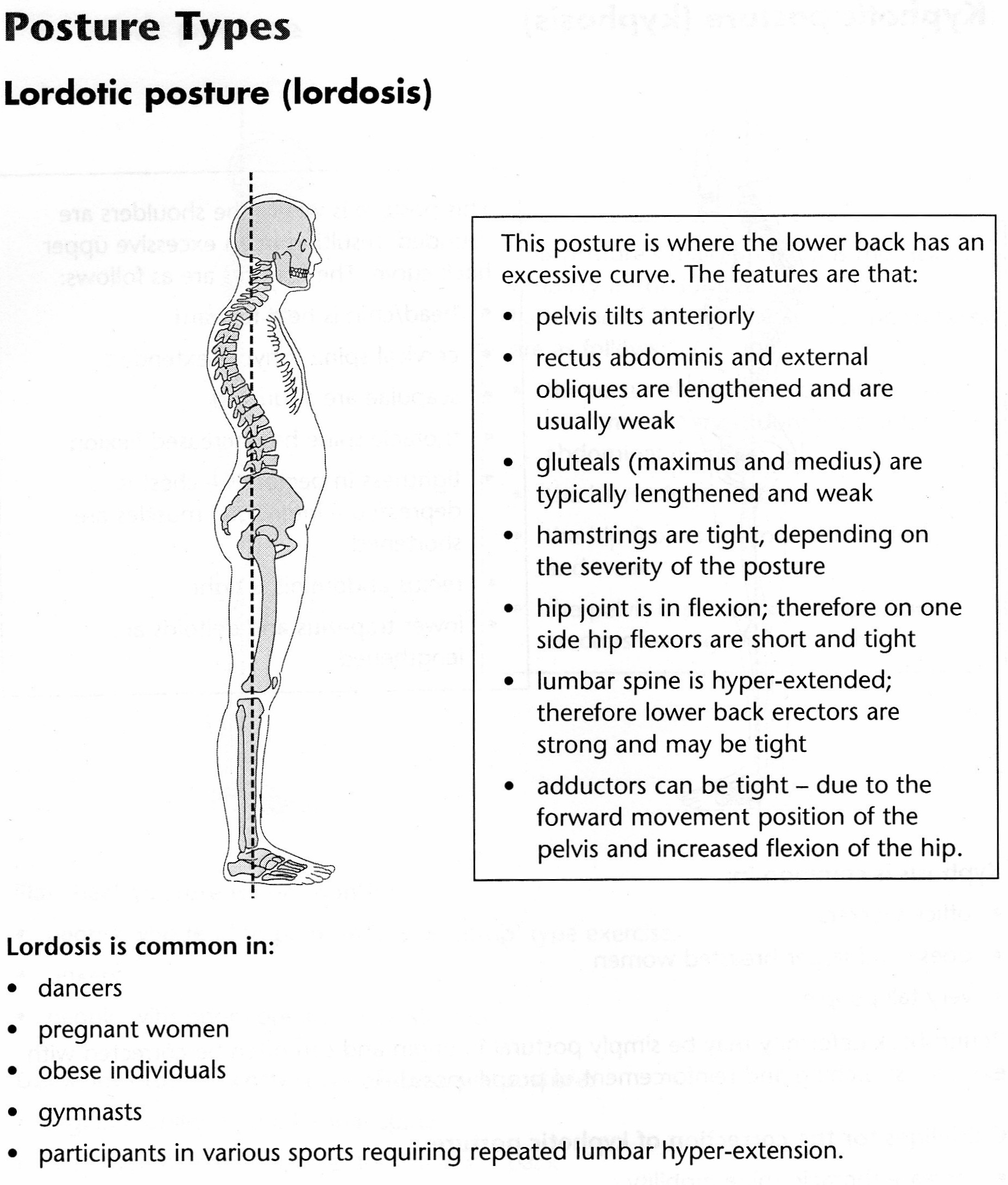 What Posture Type Are You? | Embody Pilates