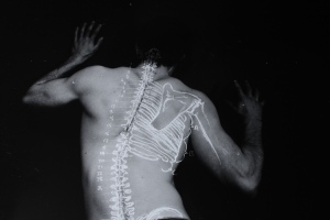 Back x-ray