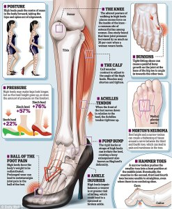 Impact on the body of high heels